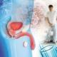 Comment prévenir les problèmes de prostate